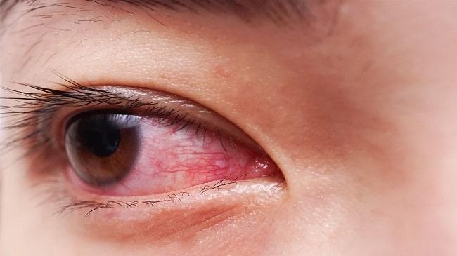 از-علائم-تا-درمان-قرمزی-چشم