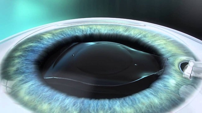 خطرات کاشت لنز تماسی در چشم