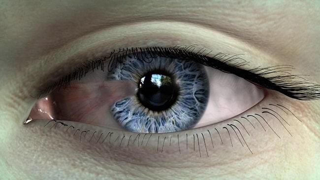 درمان-بیماری-ناخنک-چشم