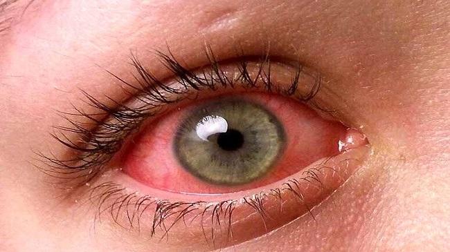 سوختگی شیمیایی چشم چیست؟