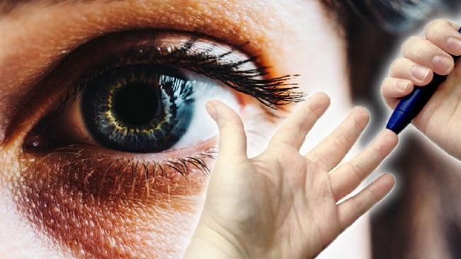عوارض بیماری دیابت بر روی چشم