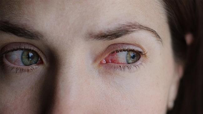 لنزهای-تماسی-چگونه-پاره-می-شوند؟