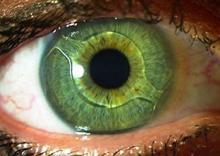 لنزهای-داخل-چشمی(لنزهای-ایمپلنت)