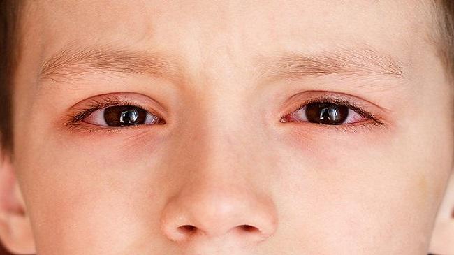 معرفی بیماری چشم صورتی (ورم ملتحمه) و راه های درمان آن