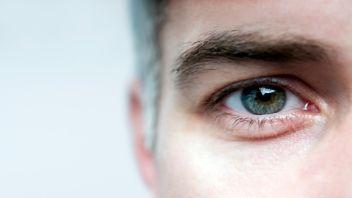 پف زیر چشم و علائم آن