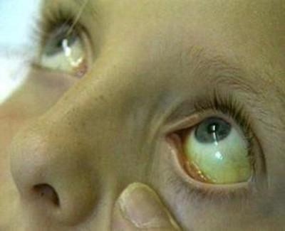 زردی چشم-دیالنز