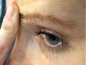 بیماری چشم