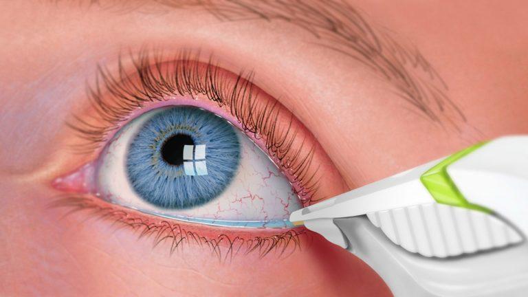 لنزها چگونه پاره می شوند