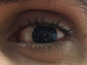 بعد از لنز پروتز