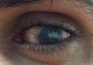 لنز پروتز