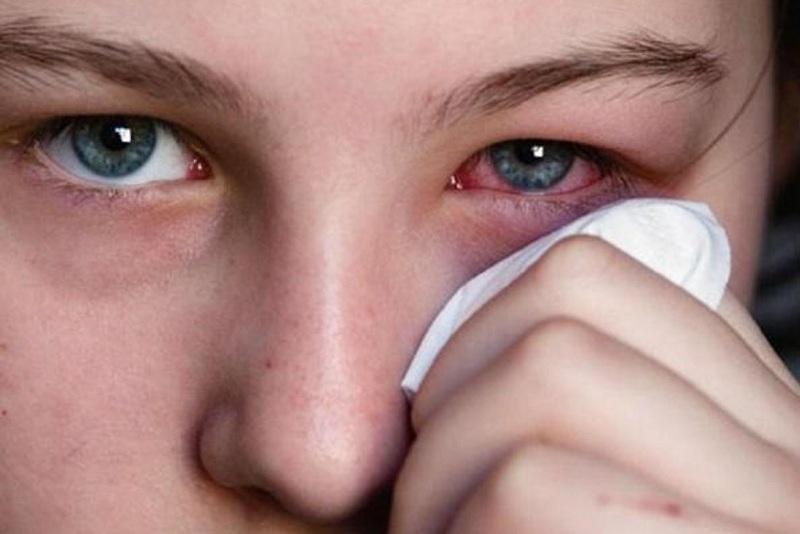 سرخی چشم - دیالنز