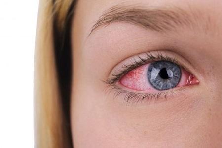 حساسیت و آلرژی به لنز چشم