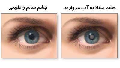 آب مروارید چشمی-دیالنز