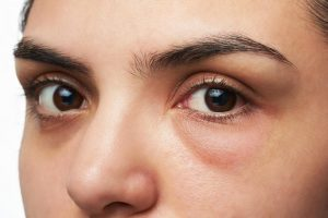 جدیدترین مدلهای لنز رنگی