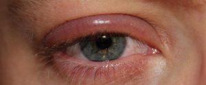 آلرژی محلول لنز