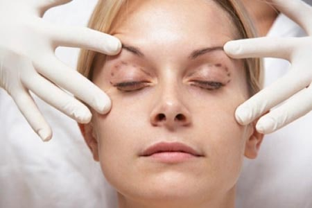 عمل کانتو پلاستی - خرید لنز طبی