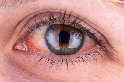 ضررهای لنز تماسی