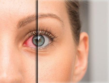 سلامت چشم،لنز طبی،لنز رنگی