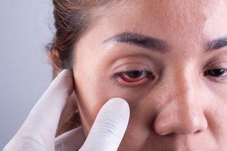 ضررهای لنز چشم