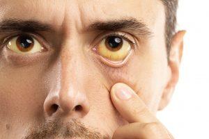 زرد شدن چشم