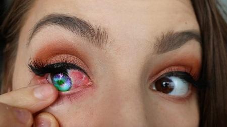 عفونت چشم در استفاده از لنز تماسی