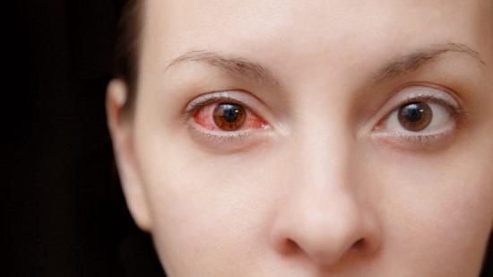 آلرژی به لنز چشم